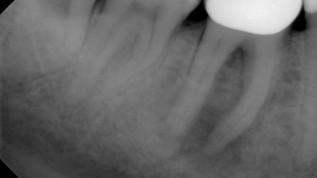Therapieerfolg in der Endodontie mittels Laser