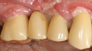 Aktuelle Behandlungsmethoden in der Parodontologie