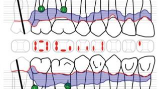 Behandlungsmethoden in der Parodontologie – Teil 3