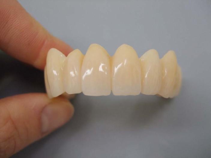Teleskopprothese sicherer zahnersatz ohne zahnimplantate auch bei