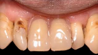 Lösungen für komplexe parodontale Probleme