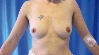 Brustvergrößerung – eine OP, viele Techniken