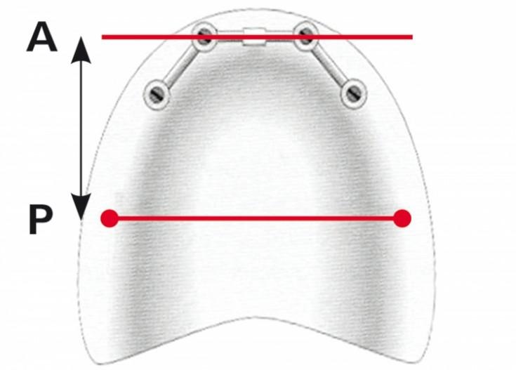 Ist Der Bereich Parameter Grundlegend - Slimniyaseru