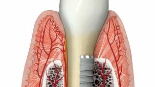 Einfluss des gingivalen Biotyps auf Implantate
