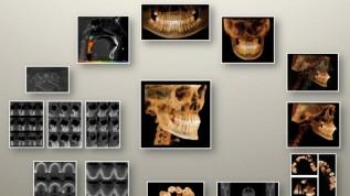 DVT in der Kieferorthopädie – wo stehen wir?