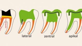 Vertikale Zahnfrakturen: Kein Ende des Zahnlebens