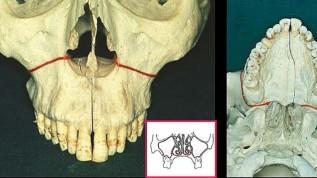 Änderung der skelettalen Strukturen im Gesicht