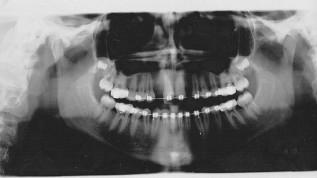 Behandlung einer Hypodontie