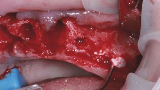 β-TCP-basierte Knochenersatzmaterialpaste