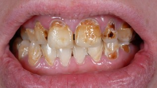 Zahnarztphobie und die verheerenden Folgen