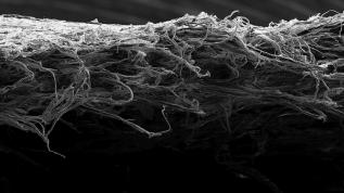 Erfahrungen mit resorbierbaren Kollagenmembranen