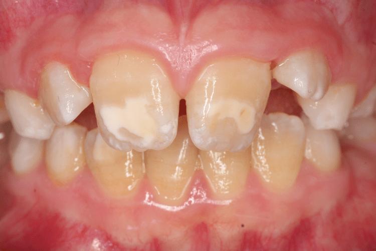 Ätiologie und Therapie von MIH-Zähnen - ZWP online - das ...
