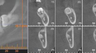 Knochentaschen bei Weisheitszahn-Osteotomien