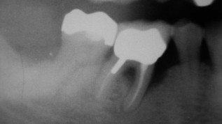 Alveoläre Knochenneubildung nach geschlossener PA