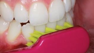 Das Einmaleins der häuslichen Mundhygiene