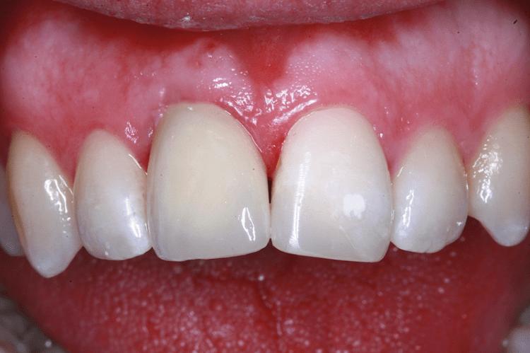 Hinterkopf Implantat