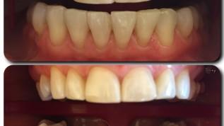 Dentcoat WP – Aufhellung mit Glanzeffekt