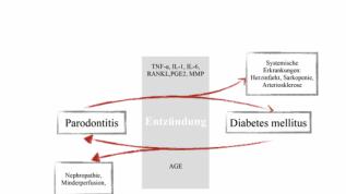 Diabetes und Parodontitis eng verbunden
