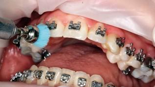 Fluoridhaltiger Lack schützt Zähne mit Brackets