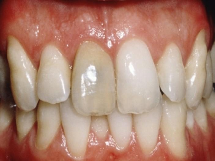 Graue Zähne Ursache