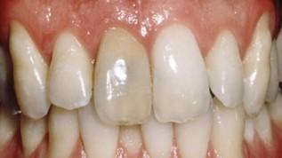 Bleaching devitaler Zähne