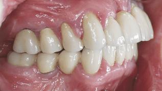 Assoziation zwischen Parodontitis und Diabetes