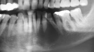 Sonografie einer Zyste mit Knochendefekt