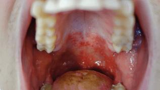 Mundschleimhauterkrankungen bei Kindern