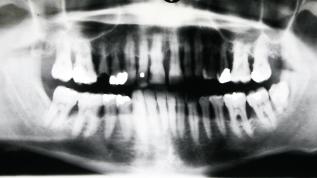 Aggressive und schwere chronische Parodontitis