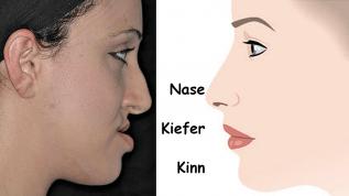 Kieferorthopädisch-kieferchirurgische Therapie
