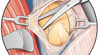 Erkrankungen der Speicheldrüsen – Teil 4