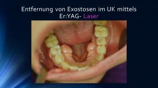 Entfernung von Exostosen im UK mittels Laser