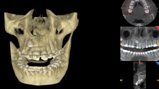 Die Therapie verlagerter Zähne als multidisziplinäre Behandlungsaufgabe