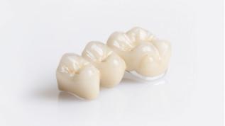 dentaltrade bietet eine große Auswahl an Prothetik für passgenaue Lösungen zu fairen Preisen