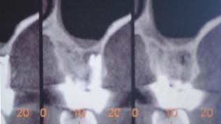 Zweiteilige Keramikimplantate als Lösung bei kompromittiertem Knochen