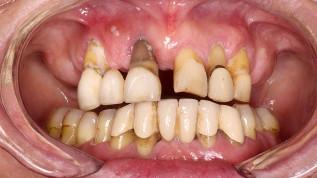 Parodontitistherapie und implantatprothetische Rekonstruktion