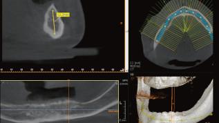 Implantatgetragene Stegversorgung im Unterkiefer