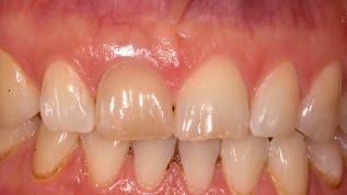 Sofortimplantation mit Keramikimplantaten in der ästhetischen Zone