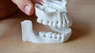 3D-Druck – wirklicher Vorteil oder digitaler Hype?