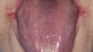 """""""Menopause im Mund – Gibt es das überhaupt?"""""""