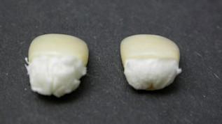 Das Polieren von zirkonoxidverstärkten Lithiumsilikatkronen