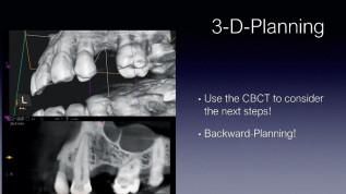 Implantatprothetische Sofortversorgung eines Einzelzahnes im Seitenzahnbereich
