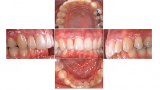 Systematik einer erfolgreichen Parodontitistherapie – Teil 2