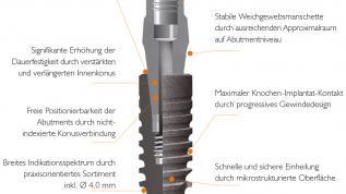 Neue Wege zur modernen Implantattherapie