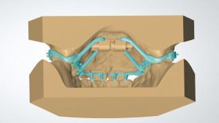 CAD/CAM im klinischen kieferorthopädischen Alltag