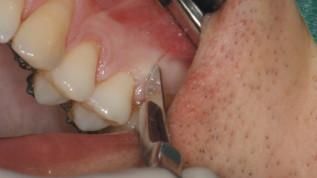 Beschleunigte orthodontische Zahnbewegung: Was funktioniert heutzutage wirklich?