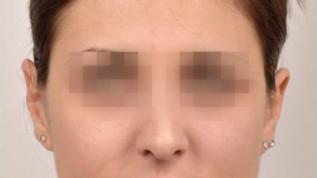 Kieferorthopädisch-kieferchirurgische Kombinationsbehandlung