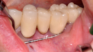 Chirurgische Periimplantitistherapie von Implantatoberflächen