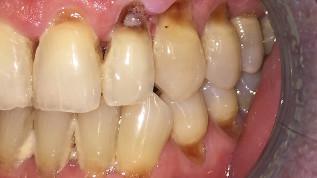 Prävention oraler Leiden bei schweren Allgemeinerkrankungen