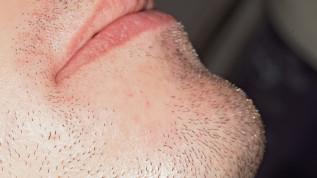 Entfernung eines peripheren odontogenen Fibroms